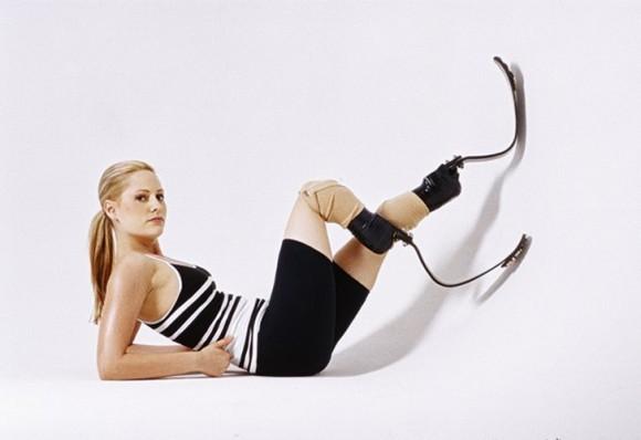 STOP SUICID! - Страница 3 Aimee-mullins-g-580x398