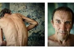 Лица туберкулёза
