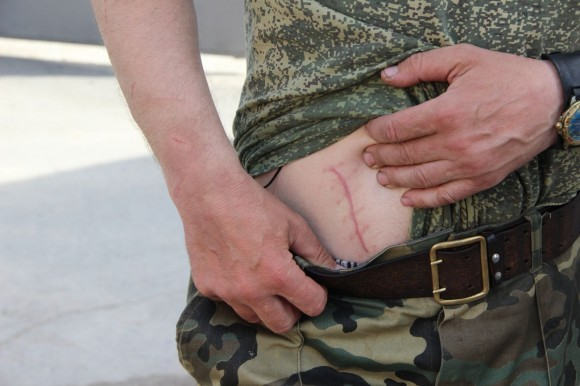 Аппендикс отцу Николаю вырезали за месяц до нападения
