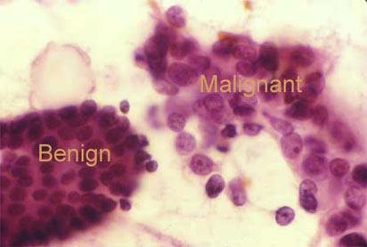 Рост доброкачественной и злокачественной опухоли: во втором случае - инфильтрация окружающих тканей опухолевыми клетками. Фото: anticancer.ru