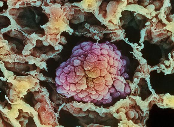 Опухоль легкого. Цветная электронная микрофотография. Фото: Moredun Animal Health LTD