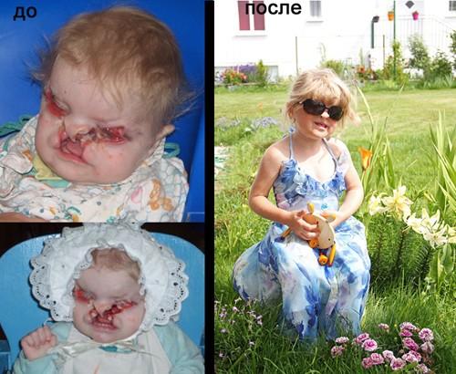 истории об усыновлении детей с фото - фото 5