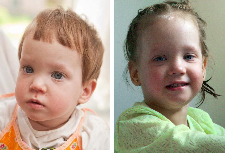 Каталог детей на усыновление фото