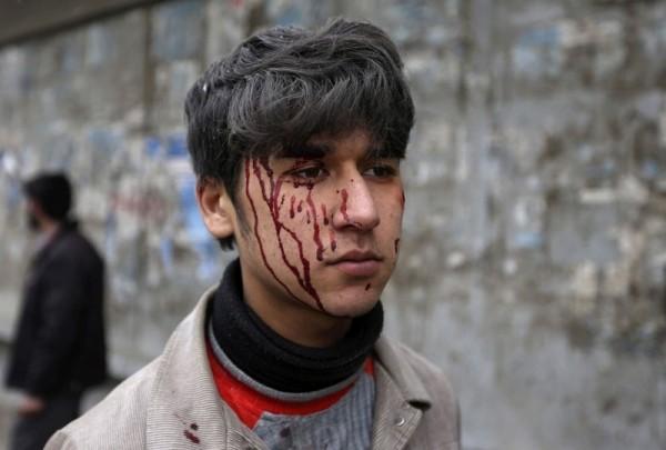 Раненный афганский мальчик с окровавленным лицом, на месте, где взорвалась машина во время атаки в Кабуле, 16 января 2013 года. Бомба разорвалась в машине напротив ворот афганских спецслужб, рядом с тщательно забаррикадированными правительственными зданиями и посольствами Западных стран. (Рейтер / Омар Собани)