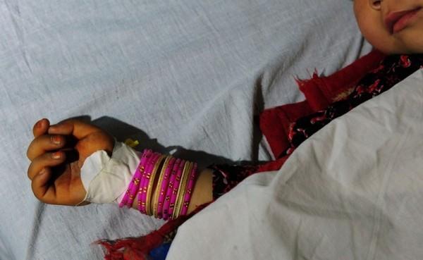42.Пятилетняя афганская девочка, как утверждают, изнасилованная 22-хлетним мужчиной, лежит на больничной койке в районе Кальдар провинции Балк Мазал-и-Шарифа, 12 ноября 2012 года. Предполагаемый насильник и ее сосед позже был схвачен полицией. Несмотря на миллиарды долларов, вложенных международными гуманитарными организациями за десятилетия войны, насилия над женщинами не становится меньше. Около 87 процентов афганских женщин, согласно октябрьскому отчету Британского благотворительного фонда Оксфам, заявили, что были подвержены физическому, сексуальному или психологическому насилию или были насильно взяты в жены. (Квес Усян / AFP / Getty Images)