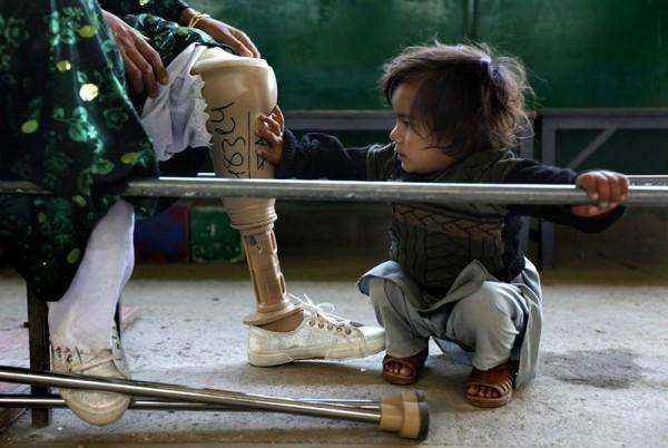 44.Афганская девочка трогает искусственную ногу своей матери в ортопедическом центре ICRC Али Абад в Кабуле, 12 ноября 2009 года. Центр, которым управляют в основном люди с ограниченными возможностями, помогает с обучением и реабилитацией жертвам  минных разрывов, а также людям с разными дефектами. В центре им помогают эффективно влиться в общество. (Рейтер / Джерри Лампен)