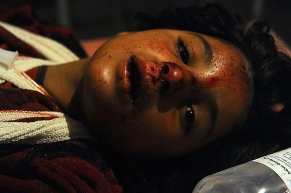 Раненный афганский ребенок проходит лечение в больнице после придорожной бомбежки 9 июля 2013 года в провинции Герат, районе Обе. Талибская бомба убила 12 женщин, четверо детей и одного мужчину, ехавших по дороге на трехколесном фургоне.  По официальным данным не менее 7 других пассажиров было ранено. (Ареф Карими / AFP / Getty Images)