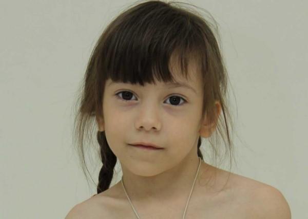 9-летней Диане требуется помощь – нужна срочная операция