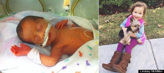 Слева: Эмили в отделении интенсивной терапии, Справа: сейчас