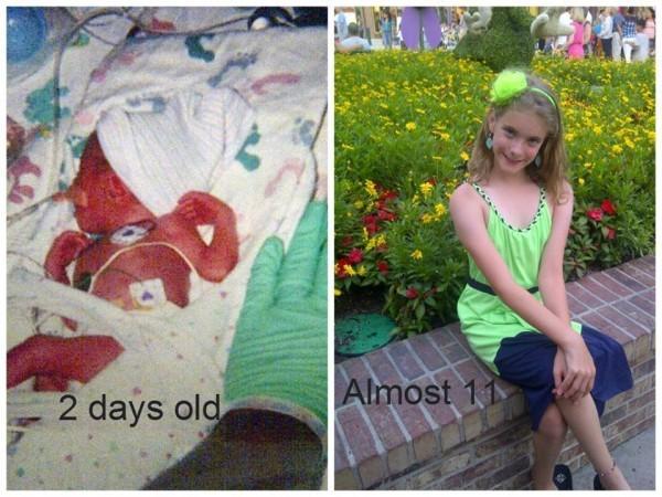 """""""Мое чудо! Родилась в 29 недель, весила 2 фунта, 7 унций (~1 кг, 300 гр), сейчас это счастливая и здоровая 11-летняя девочка"""""""