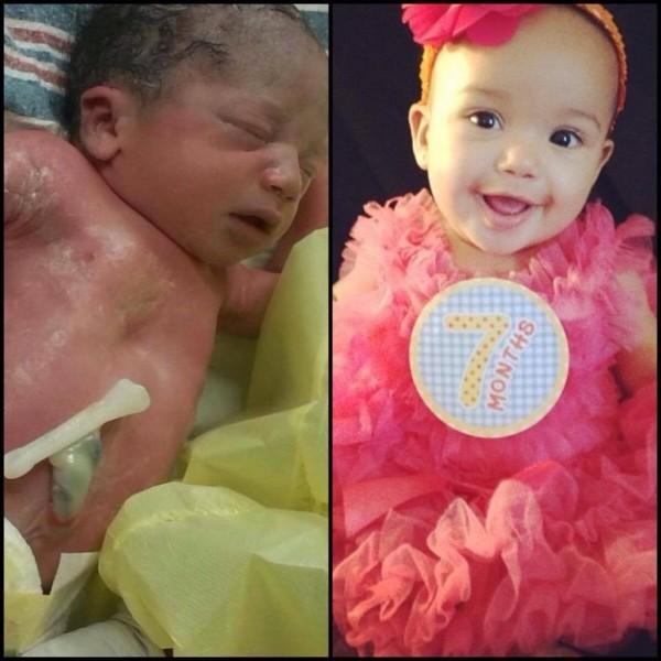 Сьерра родилась в 35 недель и провела 11 дней в отделении интенсивной терапии, сейчас ей 7 месяцев, и она прекрасна как никогда!