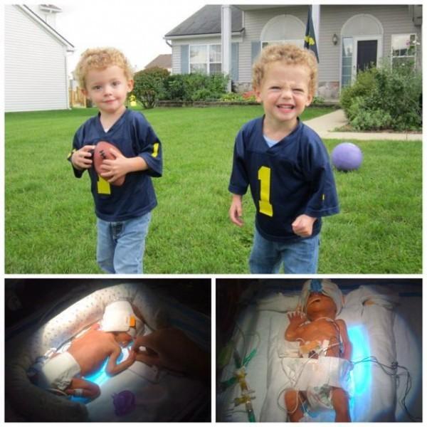 Мои сильные мальчики-близнецы, рожденные в 29 недель в университете Мичигана