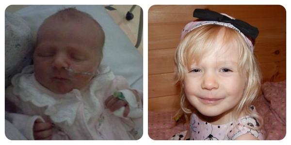 Адель родилась на 6 с половиной недель раньше и набрала почти 5 фунтов (~2 кг 300 гр). Ей только что исполнилось 3 года (5 ноября) и она находится в полном здравии и милая настолько, насколько это возможно