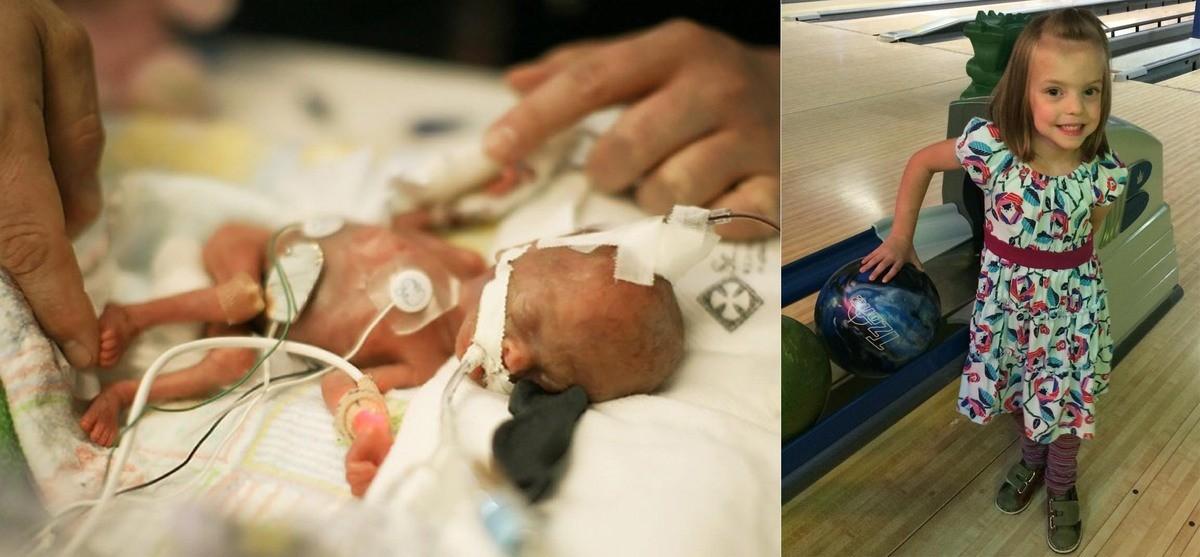 У недоношенных детей более быстрыми темпами, чем у доношенных, развивается ранняя анемия , имеется повышенный риск развития септицемии сепсиса и септикопиемии гнойного менингита , остеомиелита , язвенно-некротического энтероколита.