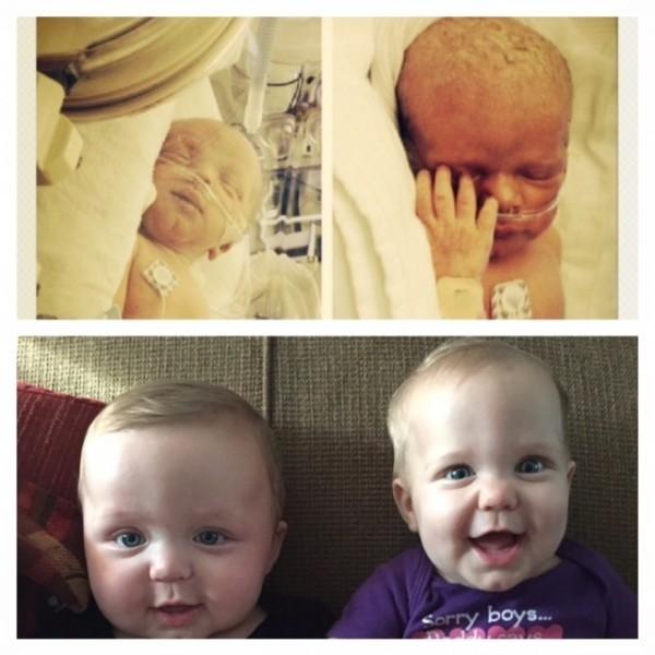 """""""Вот мои близнецы Кейси и Клэр Катерино в 34 недели и сегодня в 7 месяцев"""""""