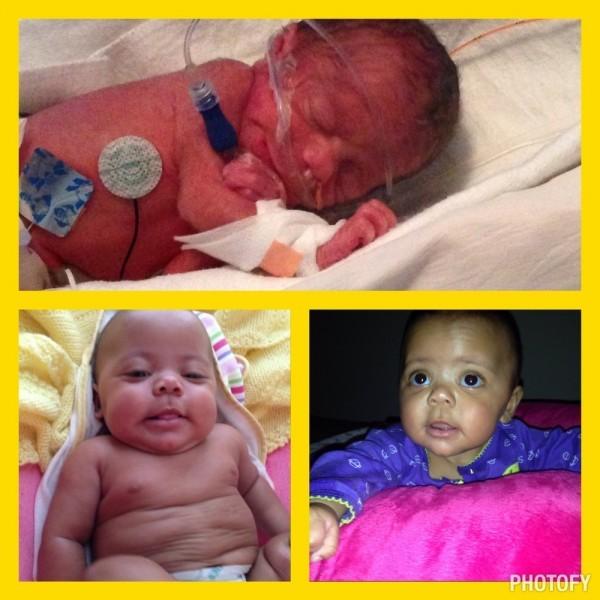 Моя дочь Райан родилась 2 июня 2014 года и весила 2 фунта, 11 унций (~1 кг), сейчас ей 5 месяцев, и она весит 14, у нее нет проблем со здоровьем, она невероятна, она - наше благословение