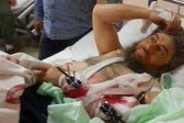 Переживший клиническую смерть боевик «Исламского государства» стал христианином