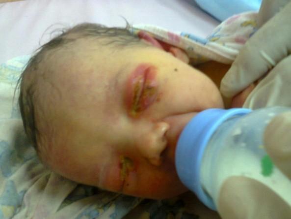 Брошенной новорождённой девочке в Челябинской области нашли приёмных родителей
