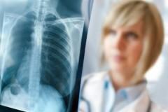 Следственный комитет начал проверку детского сада в Рязанской области из-за возможного заражения детей туберкулёзом