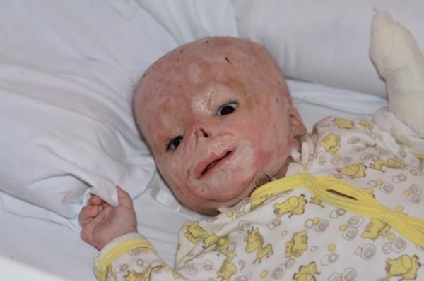 Опека Тулы приняла решение отдать обгоревшего младенца из Тулы в московскую семью