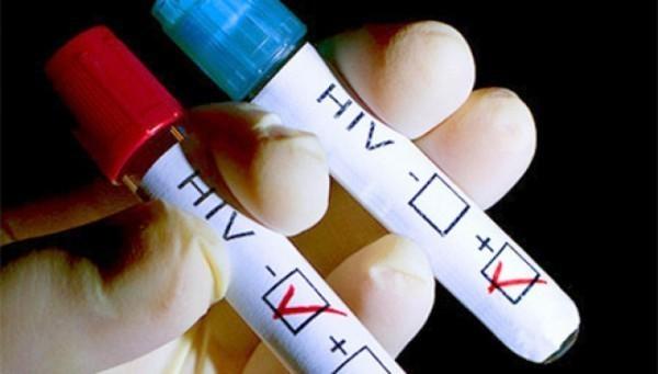 В России число людей с ВИЧ достигло миллиона