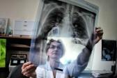 Как не пропустить туберкулез