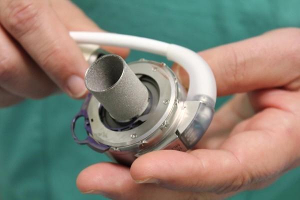 В госпитале Ватикана девушке пересадили новую модель искусственного сердца