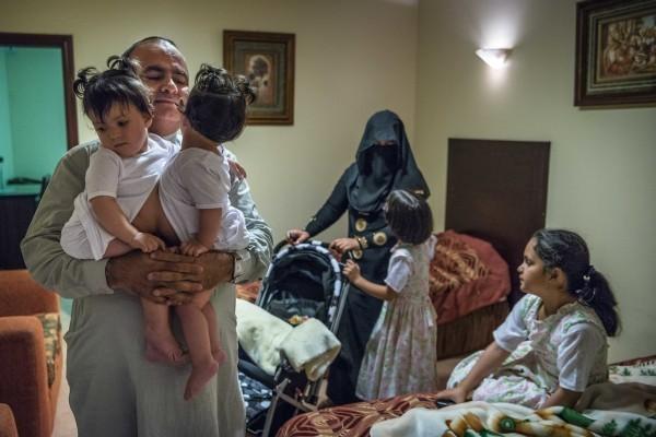 Г-н Гани и его жена, Лииной, готовятся отдать Фатиму и Мишалу в больницу. Близнецы идентичны и срослись в животе, у каждой из них две руки и две ноги, отдельные сердца и пищеварительный тракт, но они разделили одну печень на двоих.