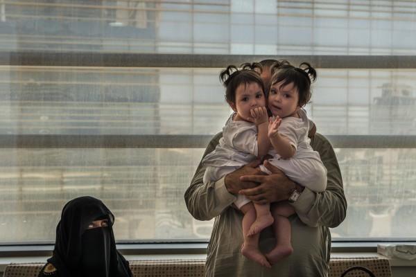 Операция была частью программы, предложенной саудовским правительством для разделения сиамских близнецов, из бедных семей по всему миру.