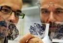 Израильские ученые разработали лекарство от симптомов болезни Альцгеймера