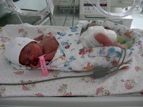 Фото недоношенного семимесячного ребенка
