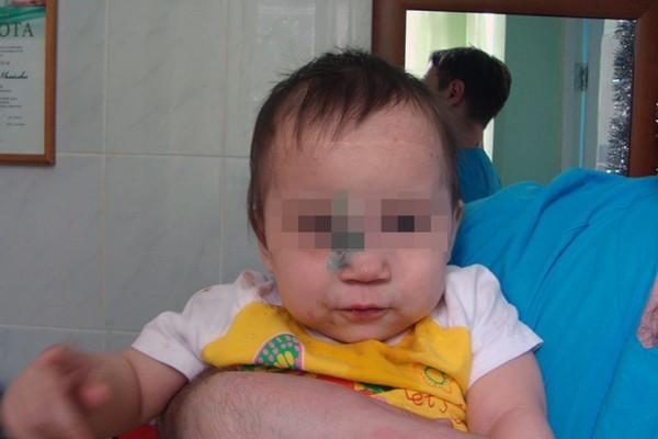 Красноярский нейрохирург сделал уникальную операцию, чтобы спасти смертельно больного ребенка