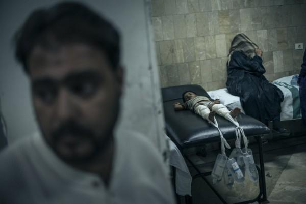 Мальчик, раненный во время столкновений, лежит в госпитале