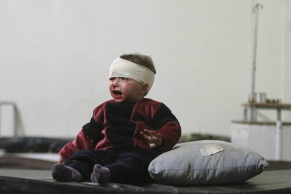 © Leanne Burden Seidel/www.bostonglobe.com Раненый ребенок в полевом госпитале в Аль-Гута, пригороде Дамаска.