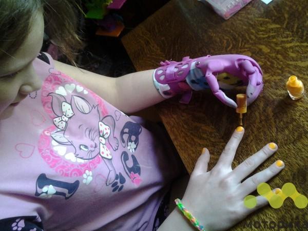 Своим умом: высокотехнологичные отечественные изобретения для инвалидов