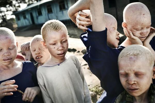 ©Johan Bävman/www.worldpressphoto.org Дети-альбиносы во время перемены в рекреации начальной школы для слепых Митидо. Эта школа стала настоящим убежищем для редких детей-альбиносов. Танзанийским альбиносам приходится бороться за жизнь. Альбиносам страшны не только прямые лучи солнца — даже в пасмурную погоду ультрафиолет в Экваториальной Африке может вызвать сильнейшие ожоги. В Африке они редко доживают до 40 лет, умирая от рака кожи. За альбиносами идет ежедневная кровопролитная охота. Органы альбиносов уходят за большие деньги. Люди слепо верят, что они даруют особую силу и здоровье.