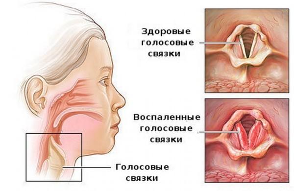 Болят соски красное горло