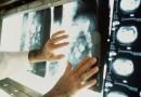 Главной причиной смертности в Западной Европе стал рак
