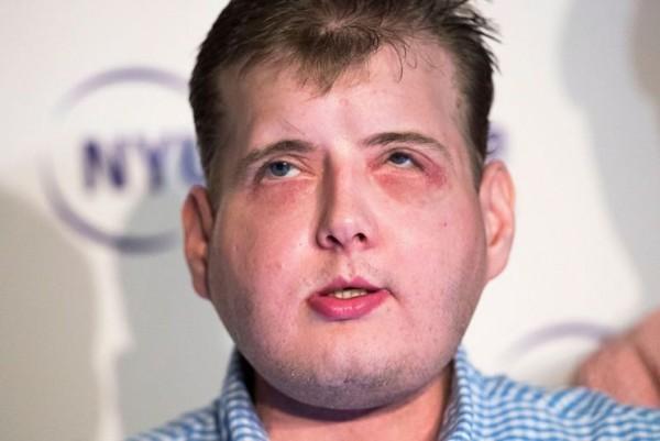 Пожарный с пересаженным лицом чувствует себя «нормальным парнем»