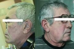 Красноярские врачи возвращают онкобольным пациентам потерянные части лица