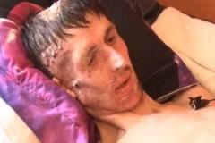 В Дагестане собирают деньги мужчине, раненому при спасении человека