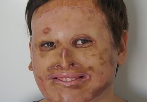 Кубанские врачи пересадили лицо юноше, пострадавшему при пожаре