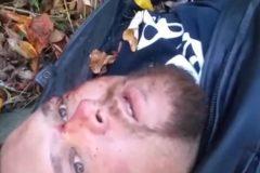 Попрощавшегося с жизнью байкера спасли спустя сутки после аварии