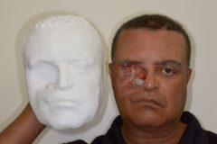 Врачи изготовили протез лица с помощью смартфона и 3D-принтера