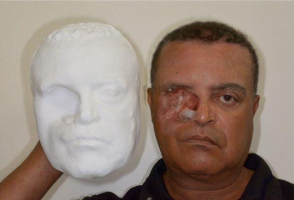 Впервый раз вистории для мужчины сделали лицо на3D-принтере