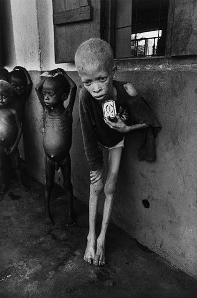 Дон МакКуллин. Мальчик-альбинос, Биафра. 1969. «Это одна из моих самых непристойных фотографий», – Дон МакКуллин.