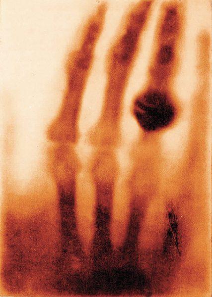 Вильгельм Рентген. Рука миссис Рентген. 1895. «Я не размышляю; я исследую», – Вильгельм Рентген.