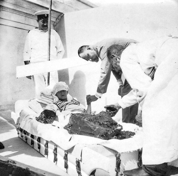 Цесаревич Алексей в грязелечебнице. Доктор Боткин держит левую руку царевича.