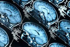 Ученые нашли новый способ диагностики диабета и болезни Альцгеймера