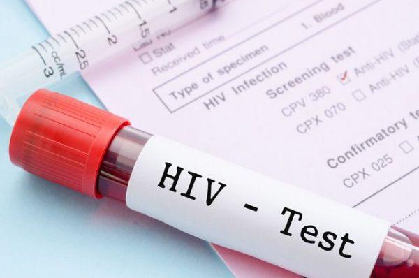 Правительство отказалось снять запрет на въезд в Россию иностранцев с ВИЧ